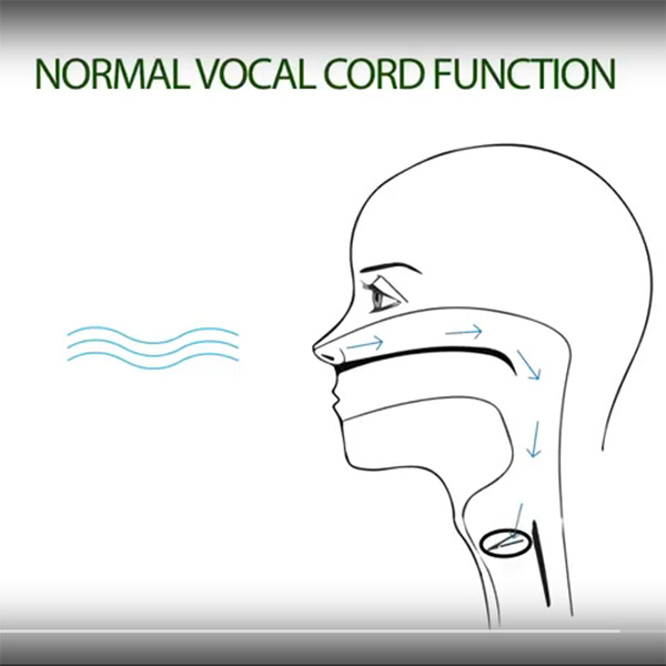 Vocal Cord Paralysis | Educational Video